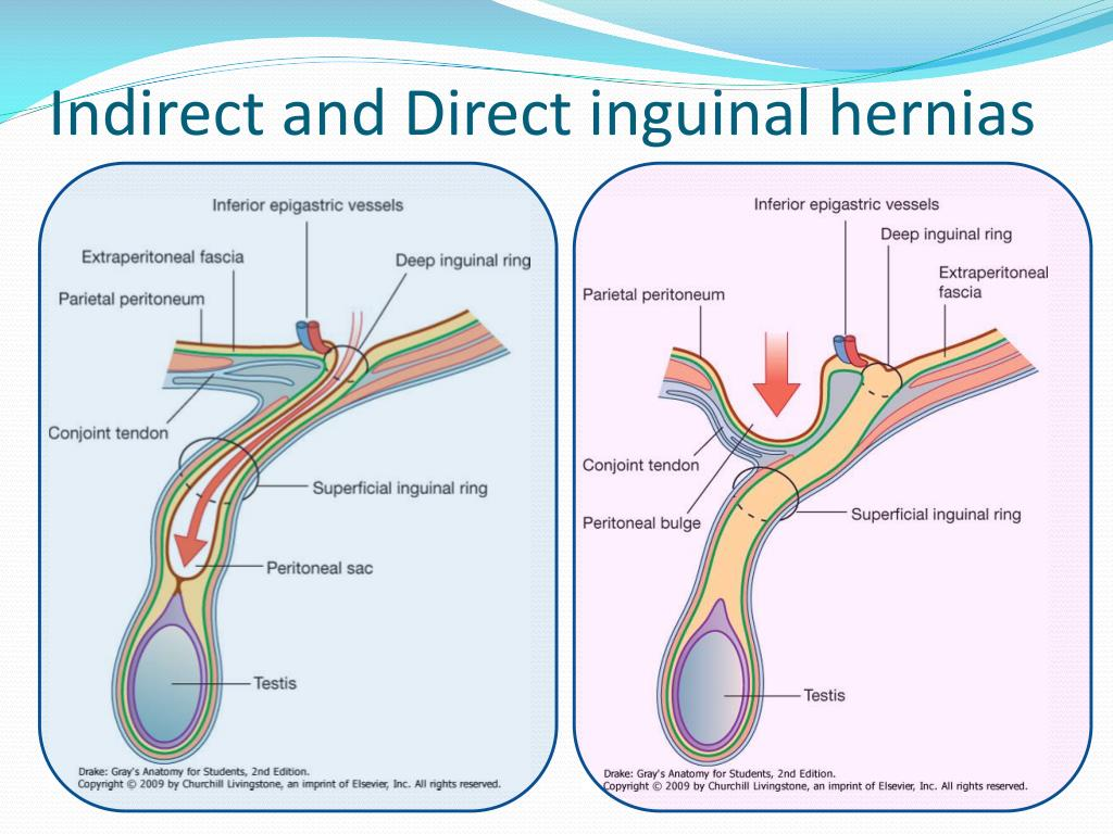 Images of Direct Inguinal Hernia - #SpaceHero