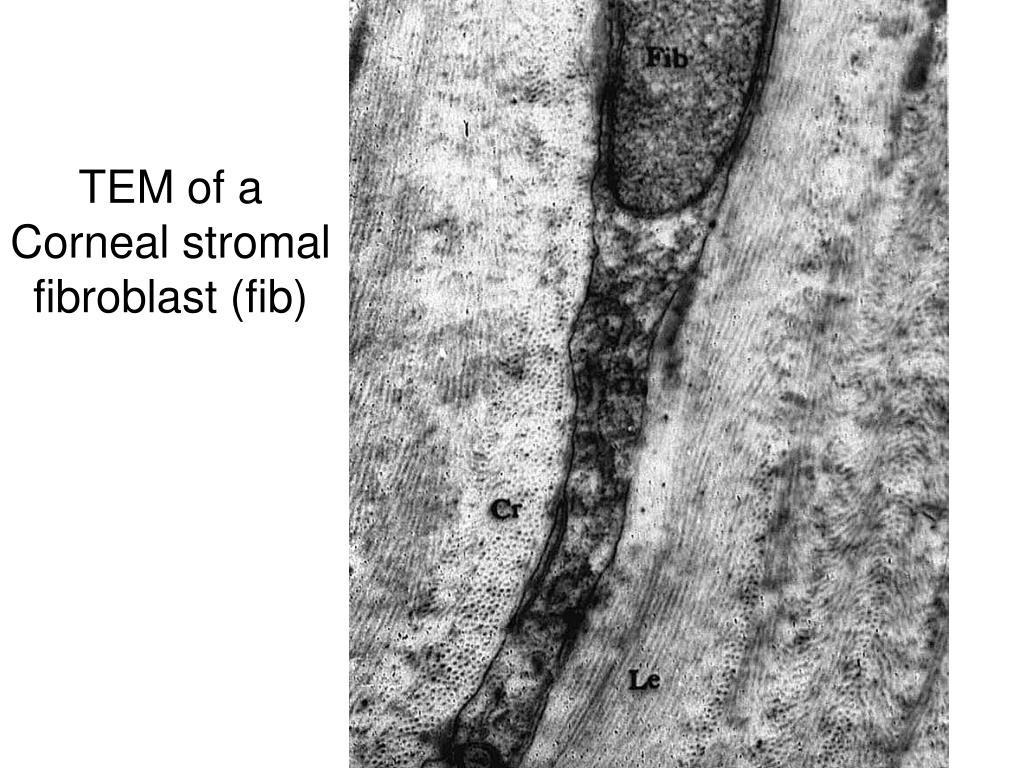 TEM of a Corneal stromal fibroblast (fib)