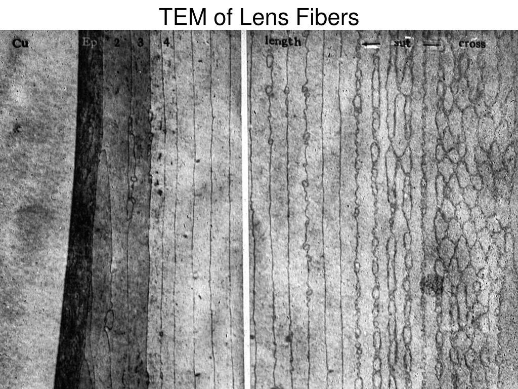 TEM of Lens Fibers