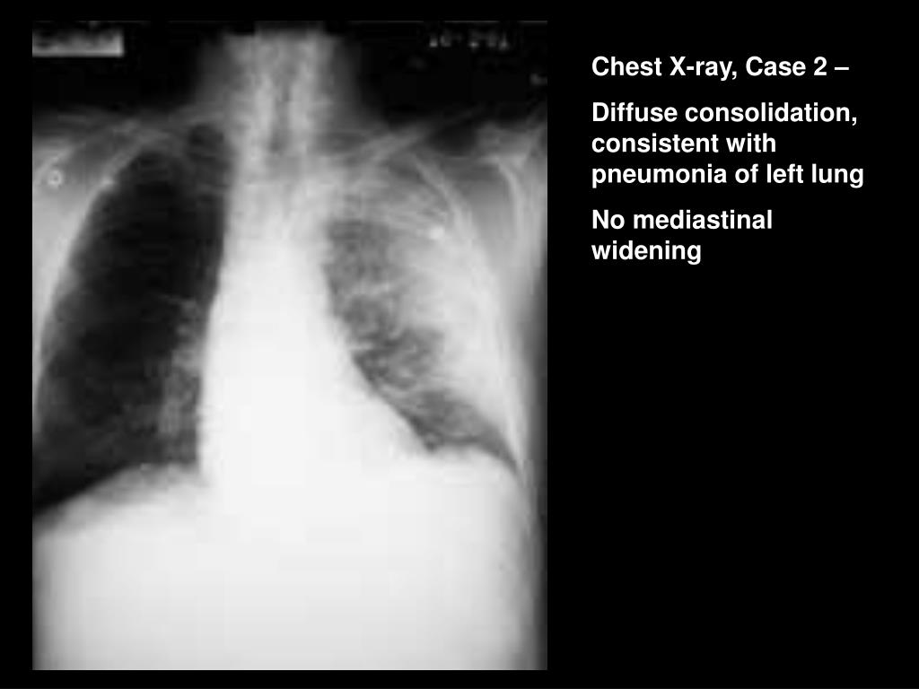 Chest X-ray, Case 2 –