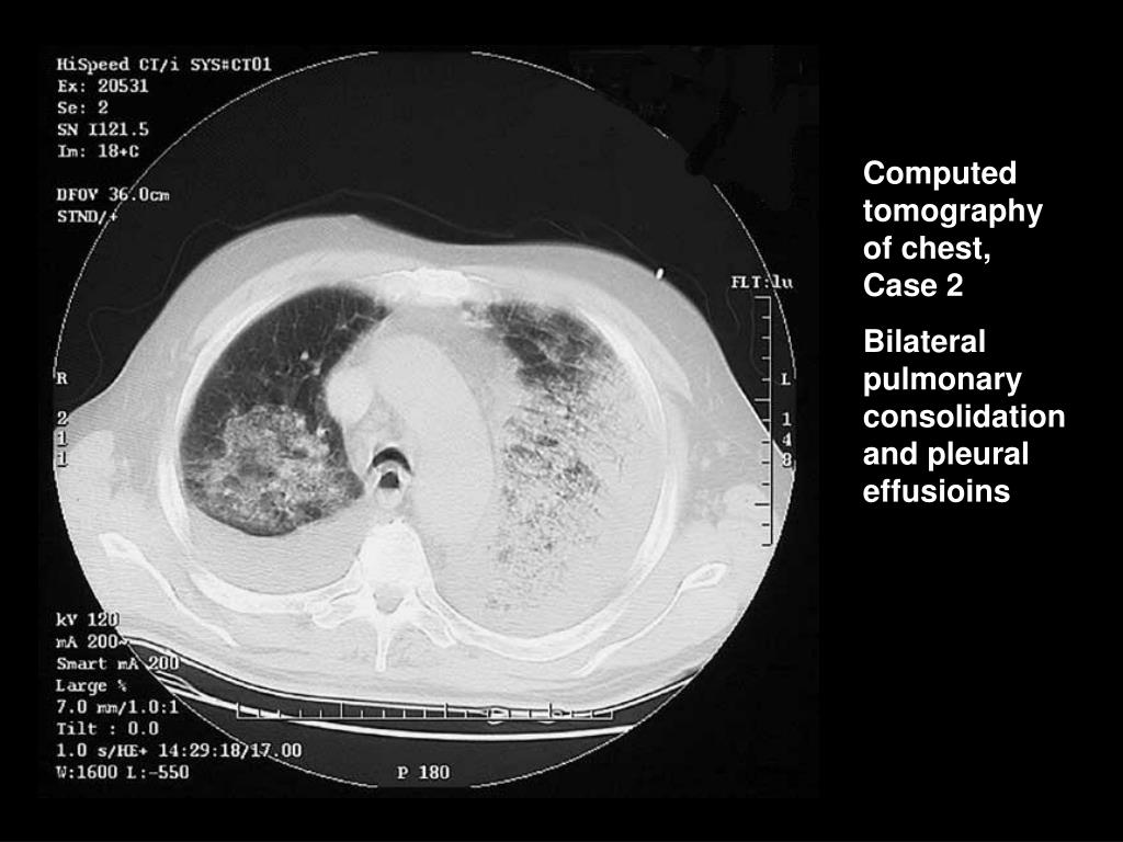 Computed tomography of chest,  Case 2