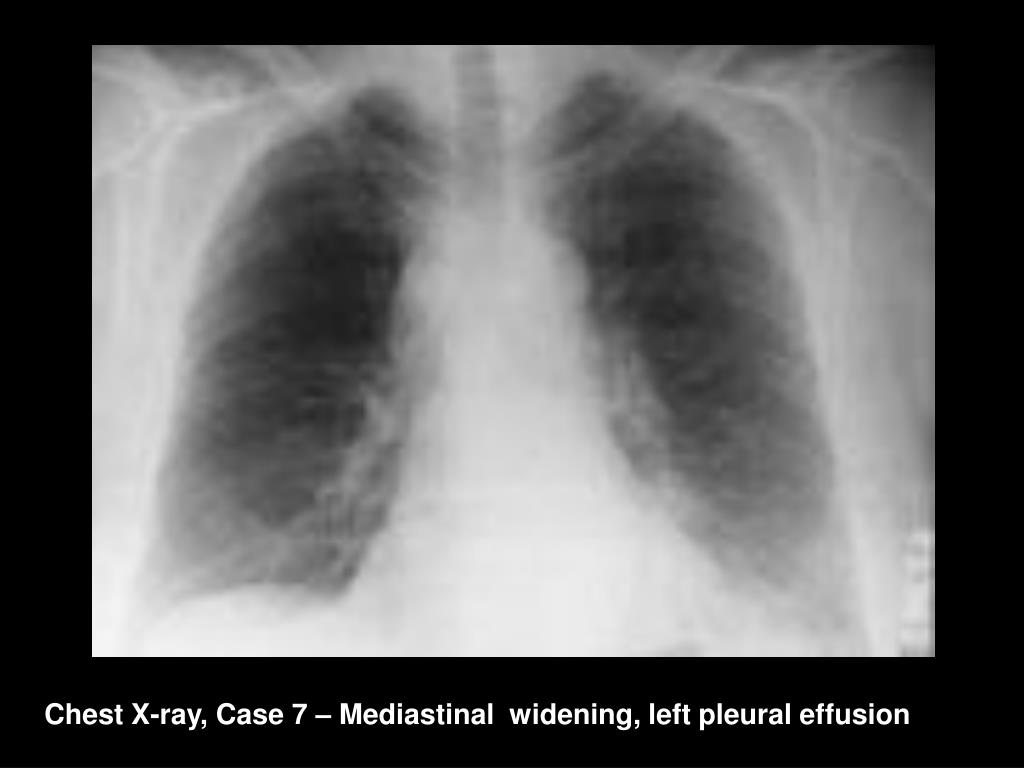 Chest X-ray, Case 7 – Mediastinal  widening, left pleural effusion