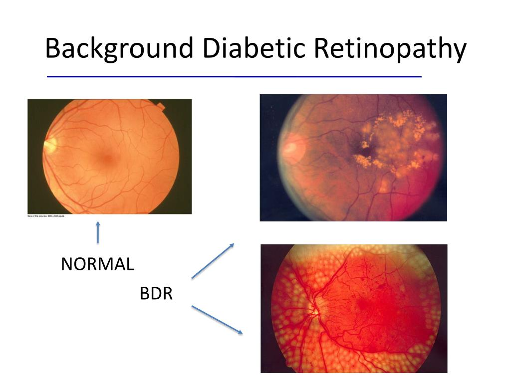 Background Diabetic Retinopathy