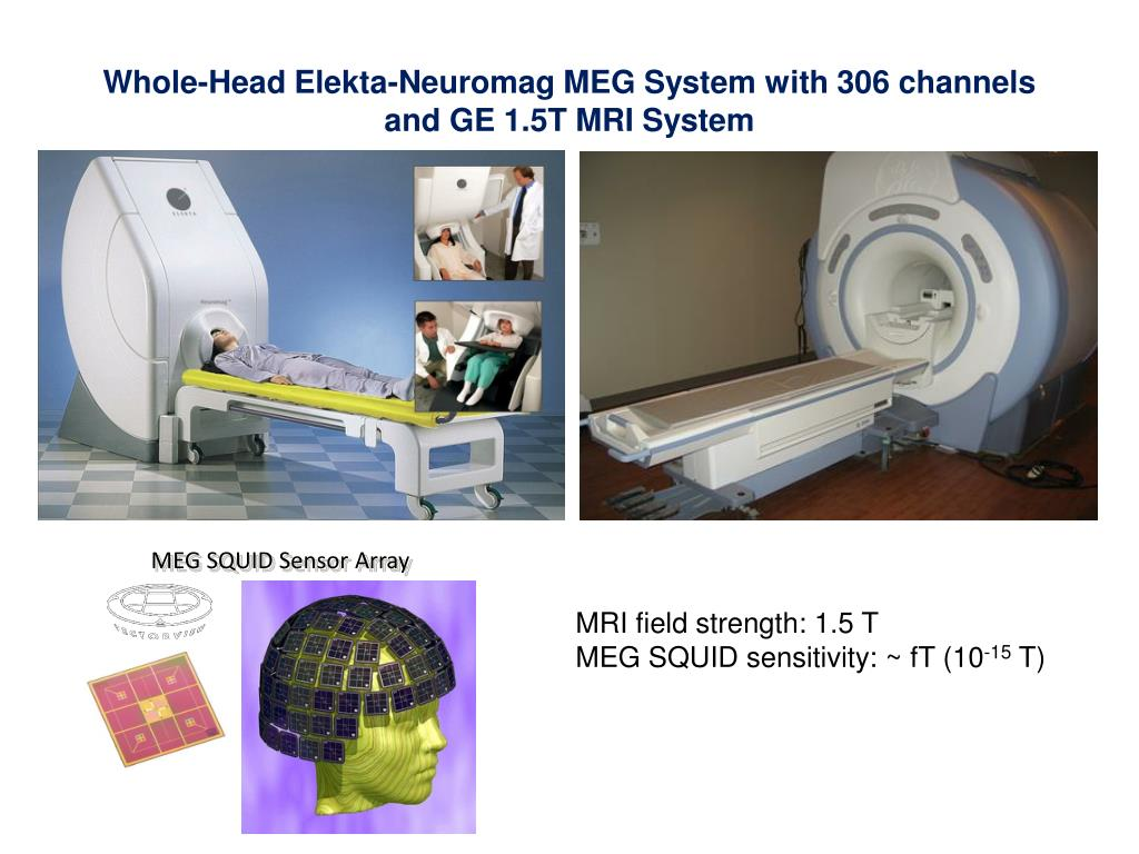 Whole-Head Elekta-Neuromag MEG System with 306 channels and GE 1.5T MRI System