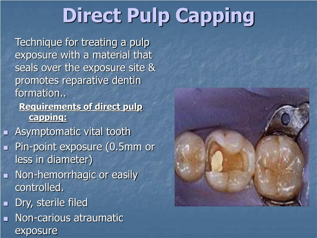 Direct Pulp Capping