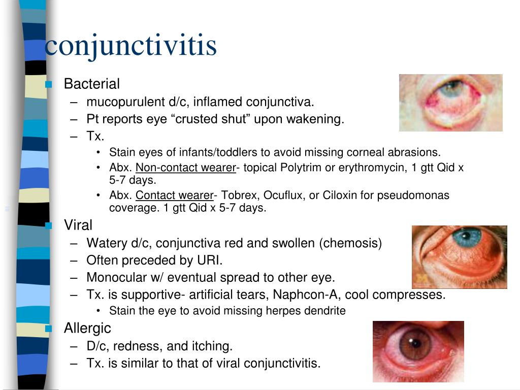 Ppt Ocular Emergencies Powerpoint Presentation Id 764166