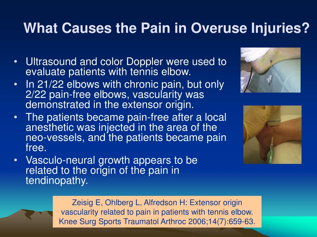 What Causes the Pain in Overuse Injuries?