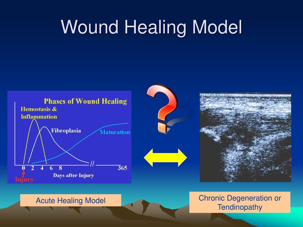Wound Healing Model