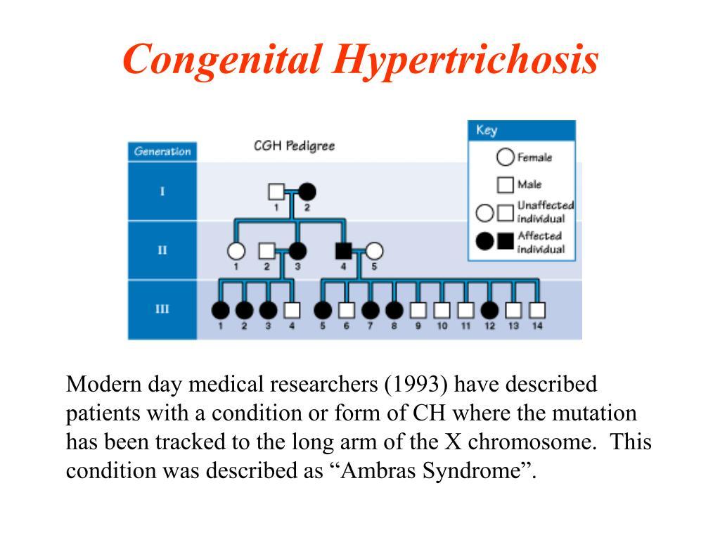 Congenital Hypertrichosis