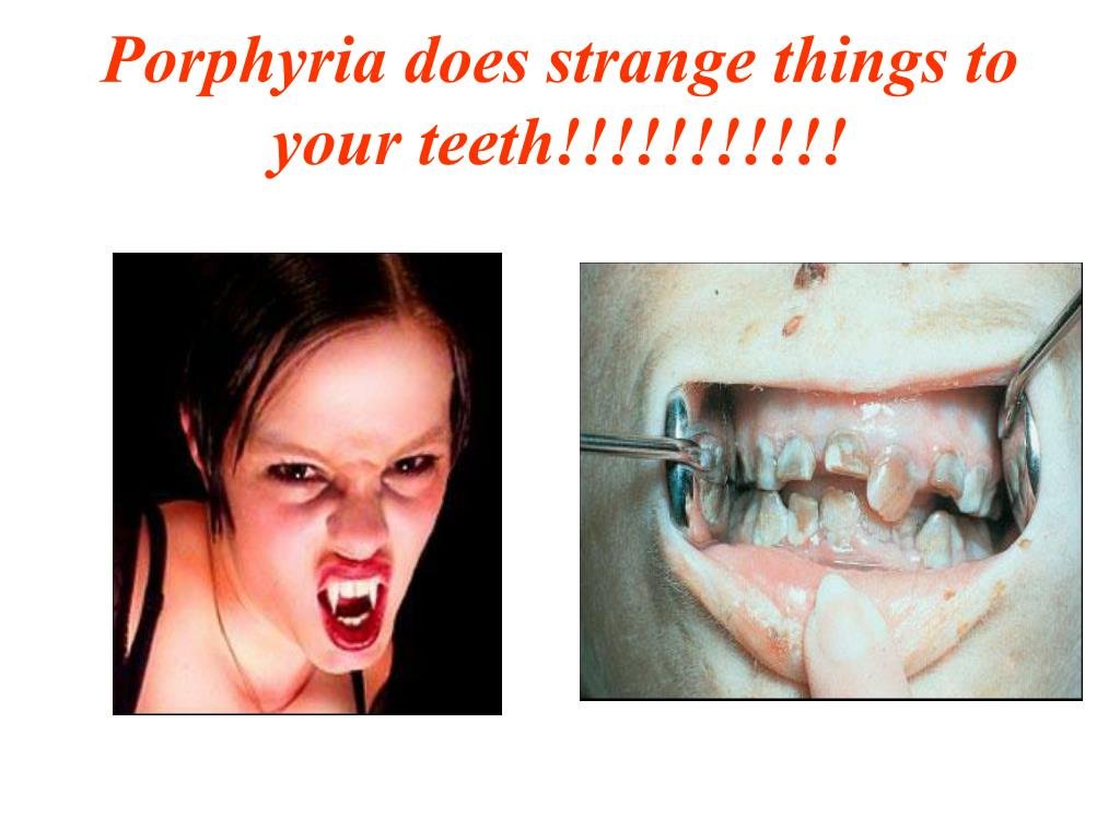 Porphyria does strange things to your teeth!!!!!!!!!!!
