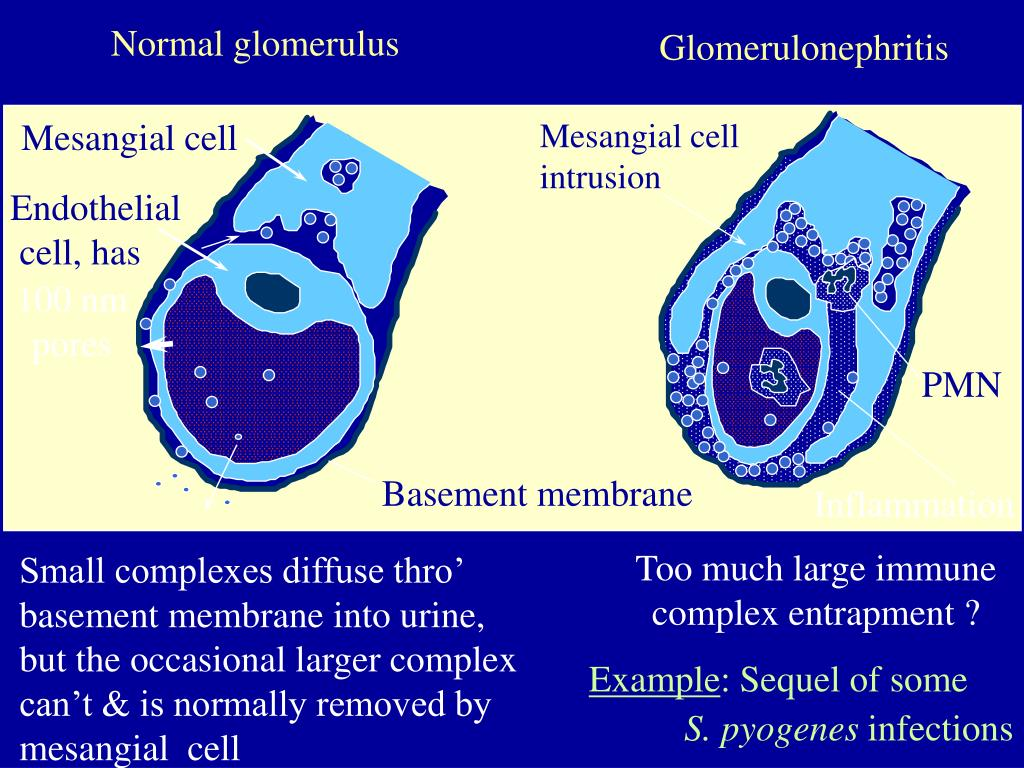 Normal glomerulus