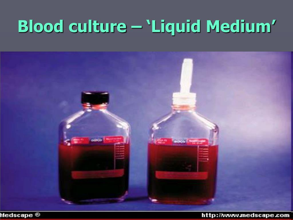 Blood culture – 'Liquid Medium'