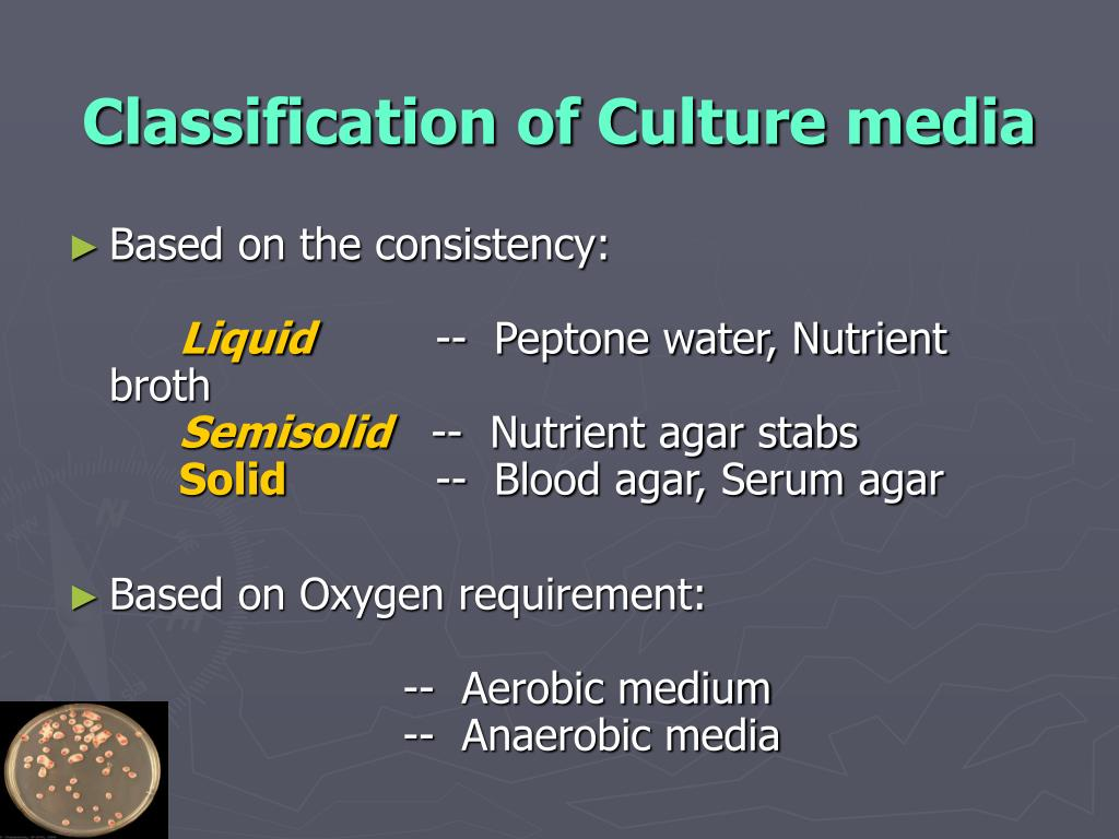 Classification of Culture media