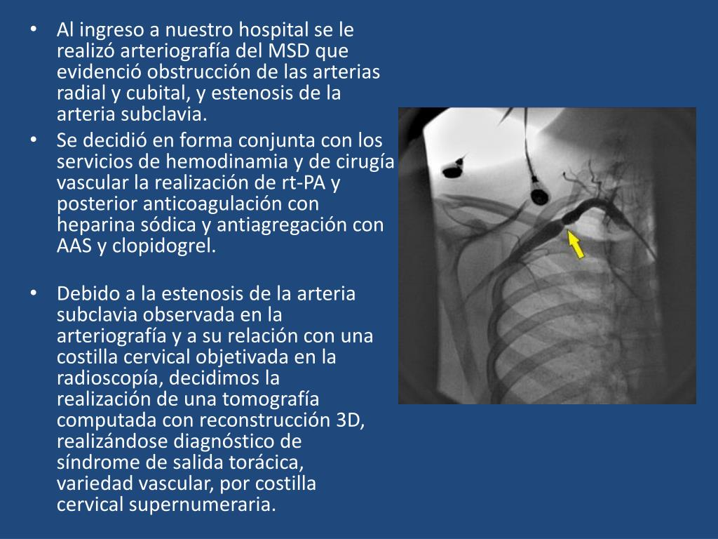 Al ingreso a nuestro hospital se le realizó arteriografía del MSD que evidenció obstrucción de las arterias radial y cubital, y estenosis de la arteria subclavia.