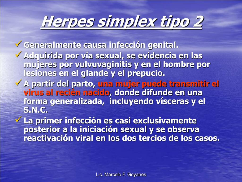 Herpes simplex tipo 2