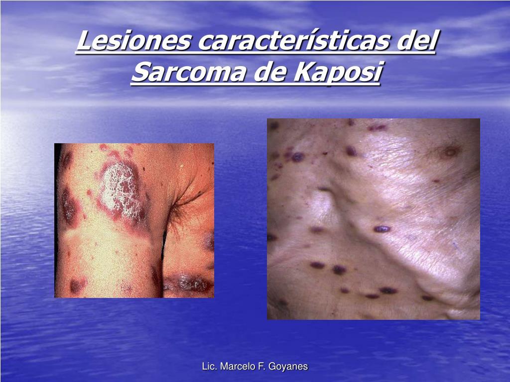 Lesiones características del  Sarcoma de Kaposi