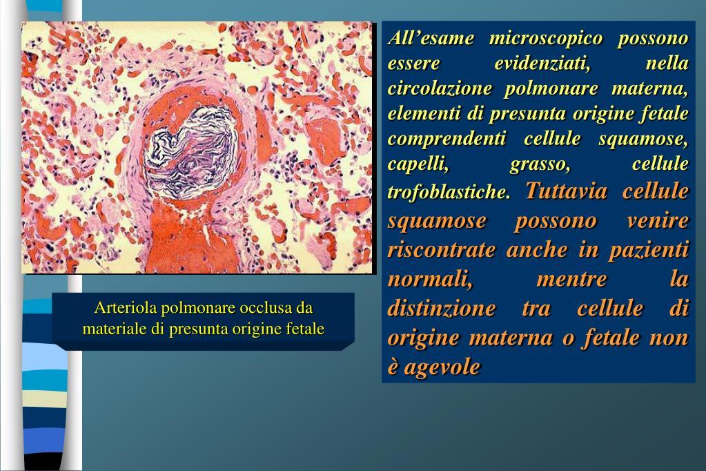 All'esame microscopico possono essere evidenziati, nella circolazione polmonare materna, elementi di presunta origine fetale comprendenti cellule squamose, capelli, grasso, cellule trofoblastiche.