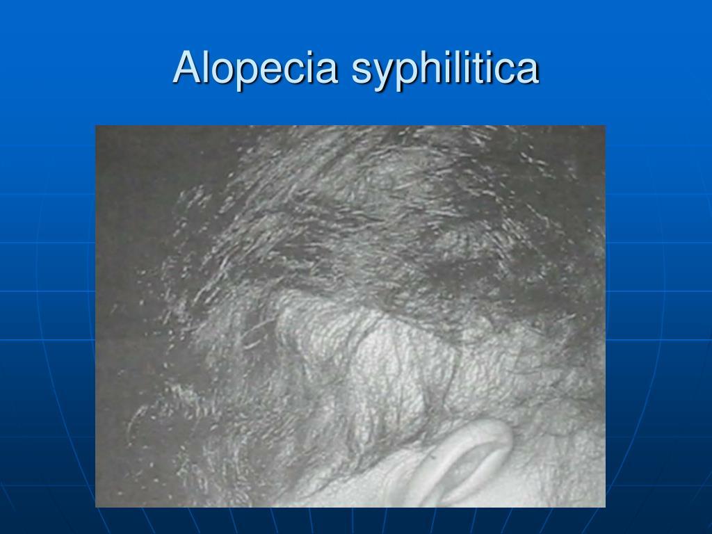 Alopecia syphilitica