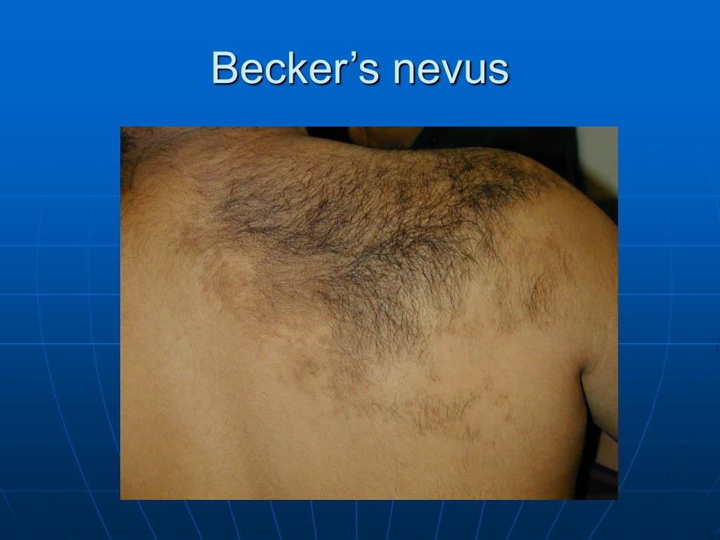 Becker's nevus