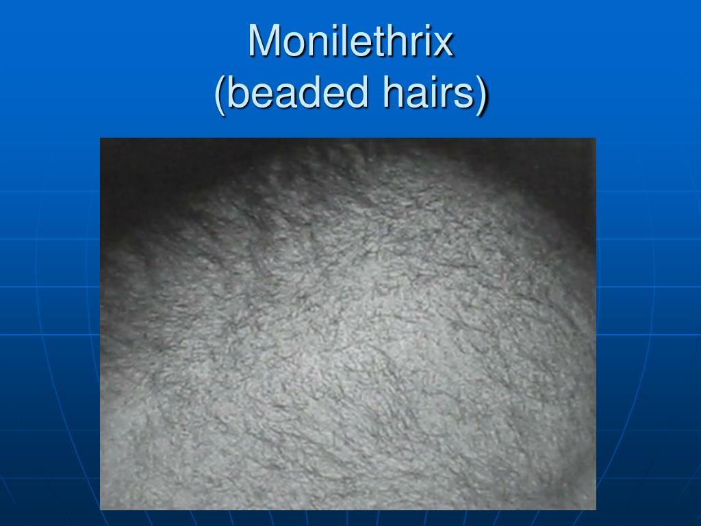 Monilethrix