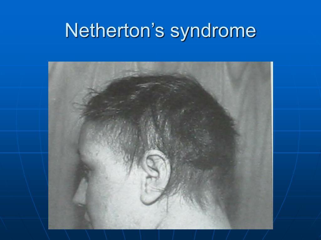Netherton's syndrome