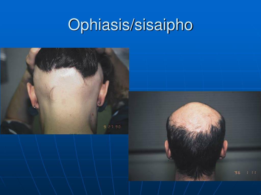 Ophiasis/sisaipho