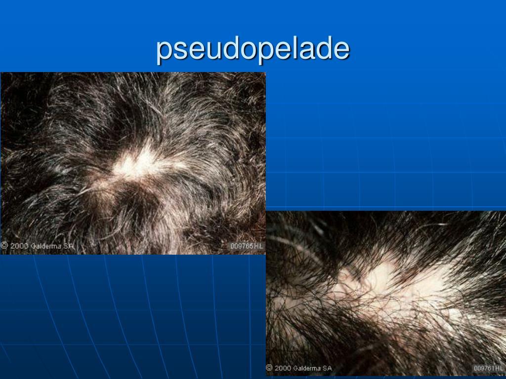 pseudopelade