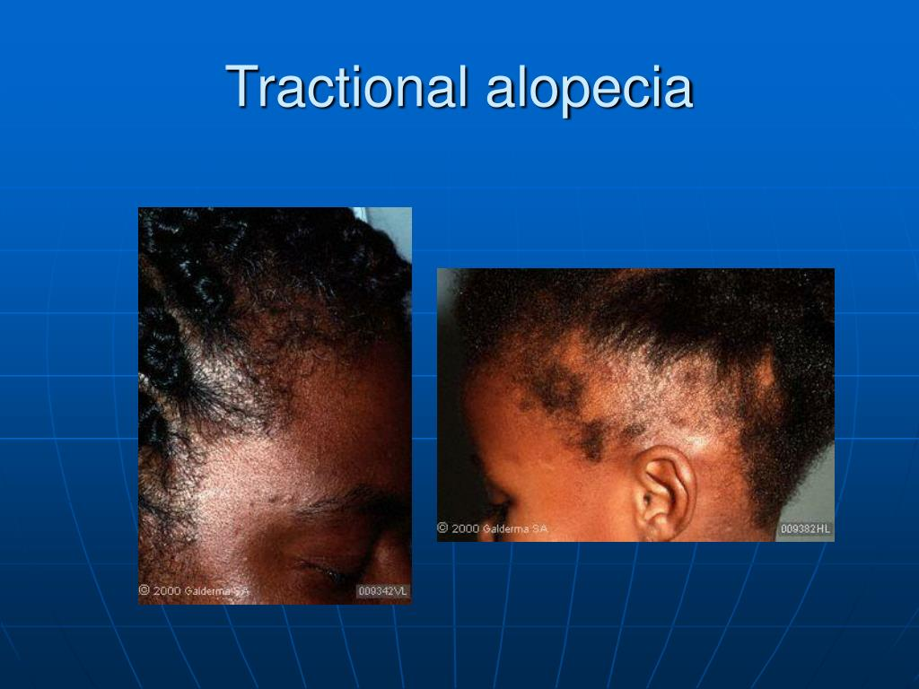 Tractional alopecia