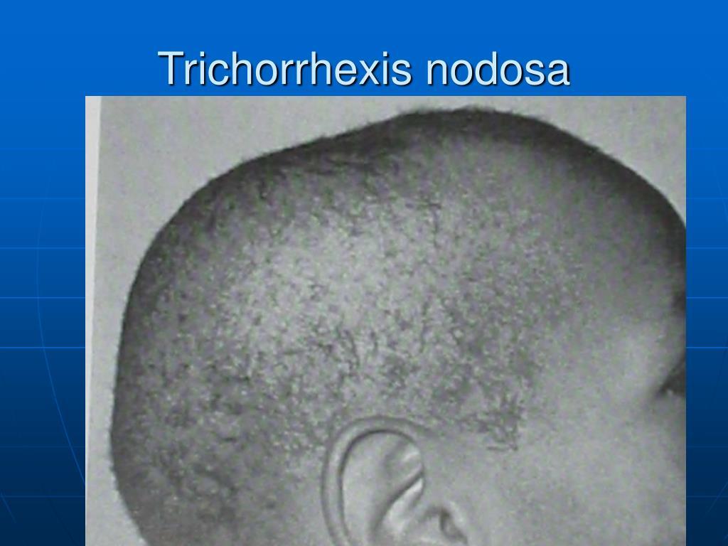 Trichorrhexis nodosa