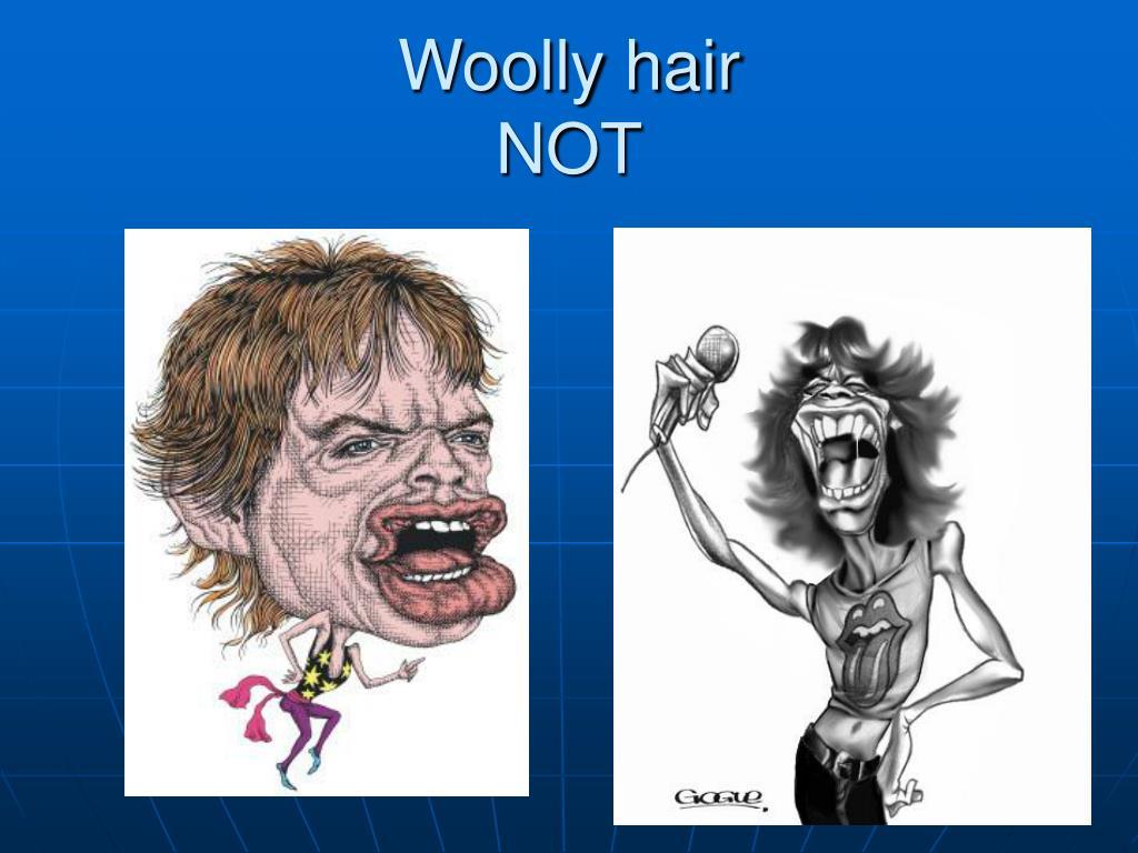 Woolly hair