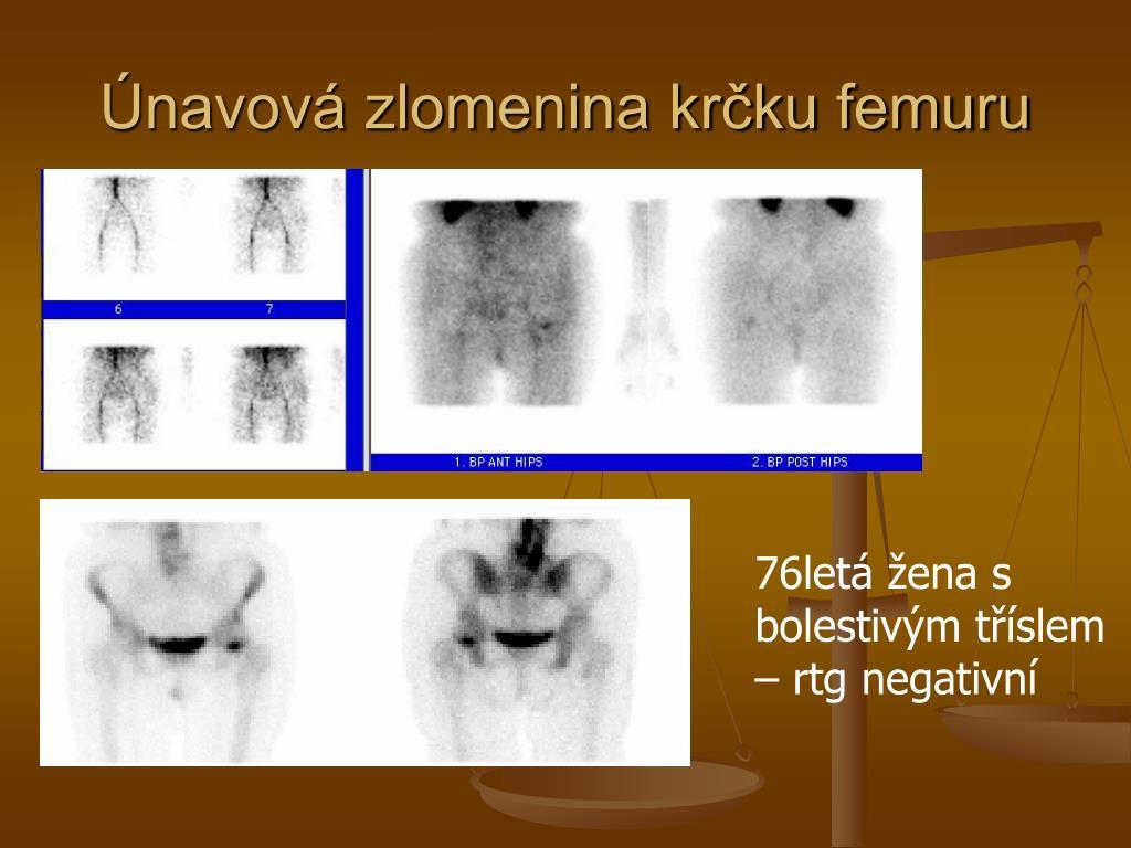 Únavová zlomenina krčku femuru