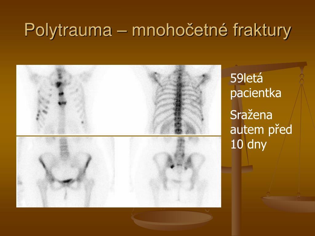 Polytrauma – mnohočetné fraktury