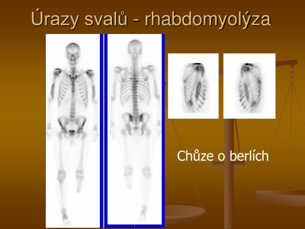 Úrazy svalů - rhabdomyolýza
