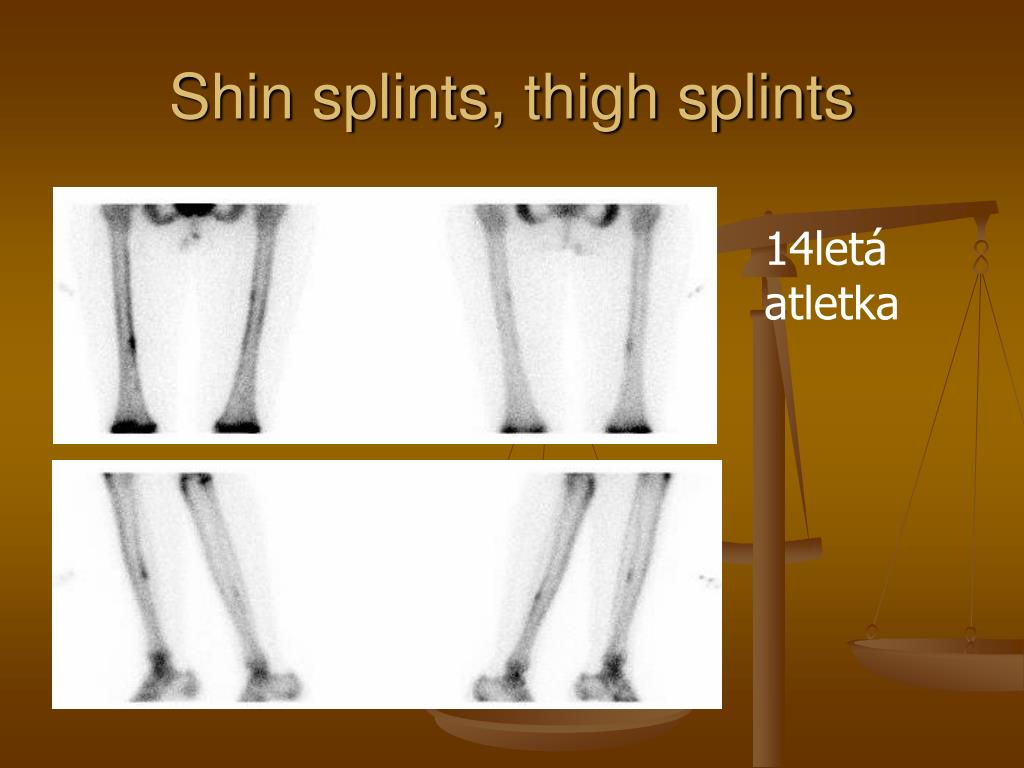 Shin splints, thigh splints