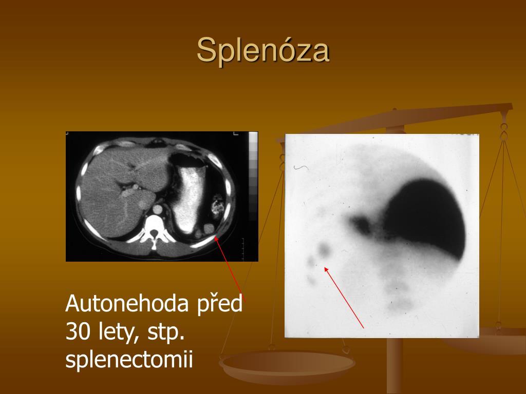 Splenóza