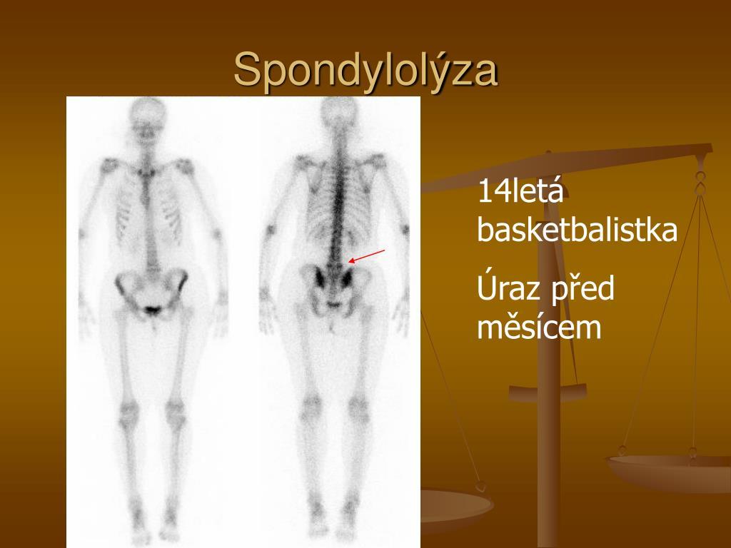 Spondylolýza