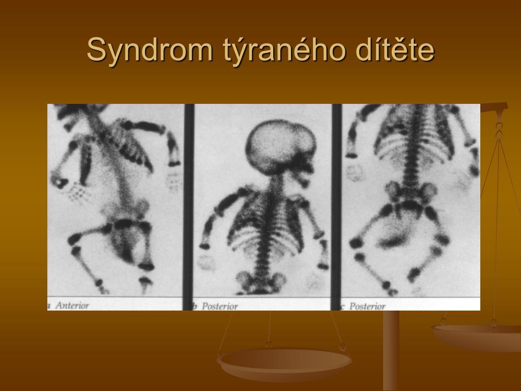 Syndrom týraného dítěte