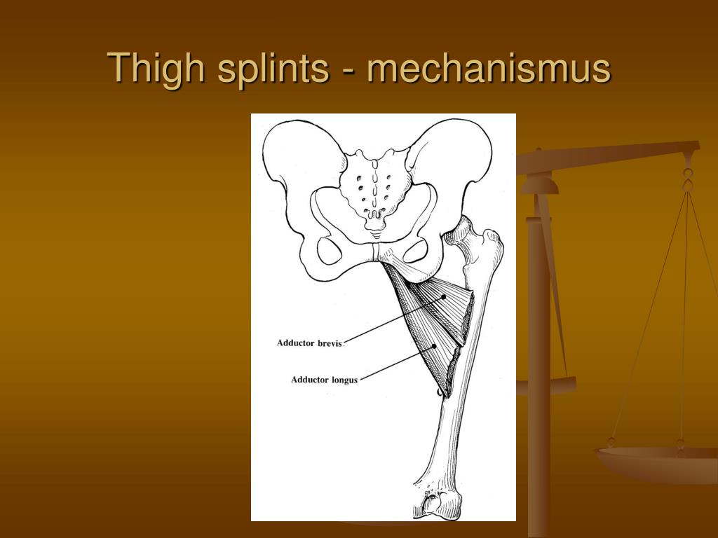 Thigh splints - mechanism