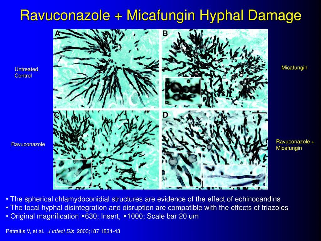 Ravuconazole + Micafungin Hyphal Damage