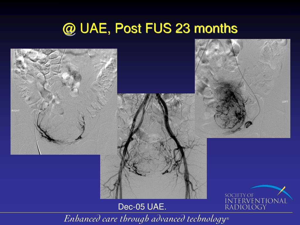 @ UAE, Post FUS 23 months