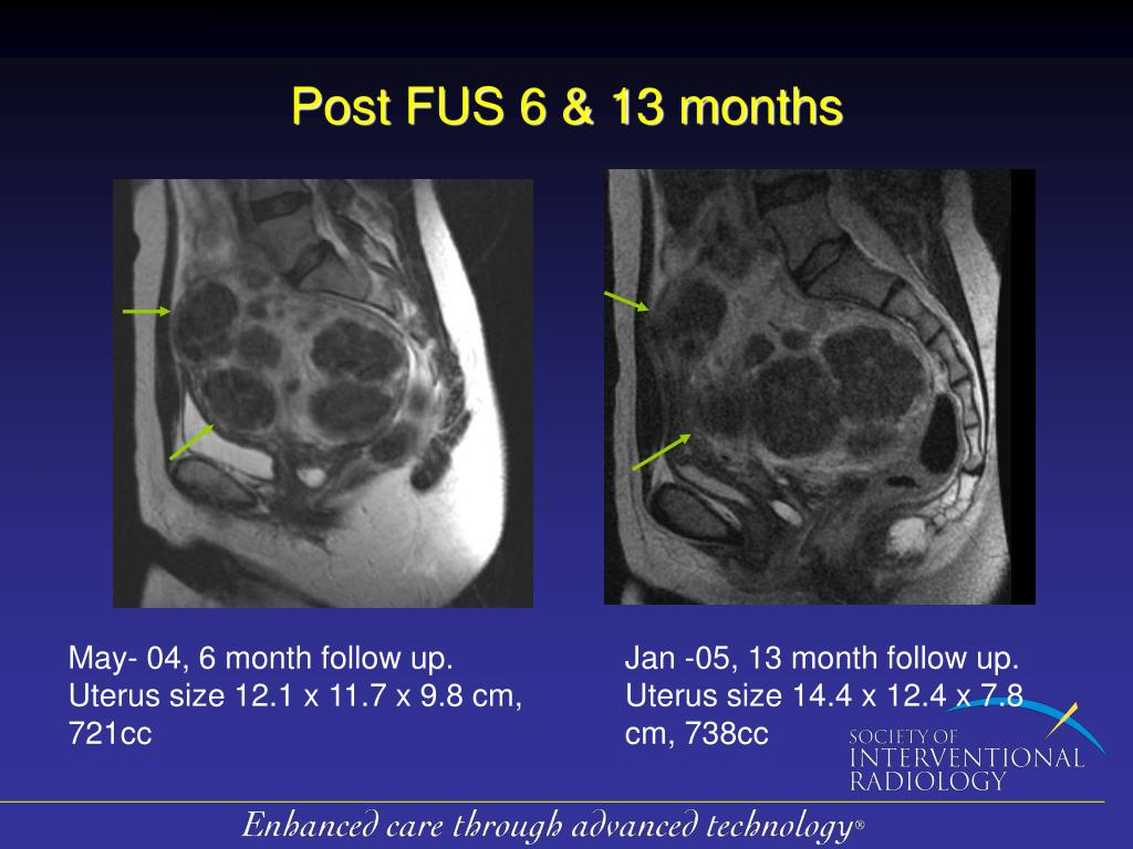 Post FUS 6 & 13 months