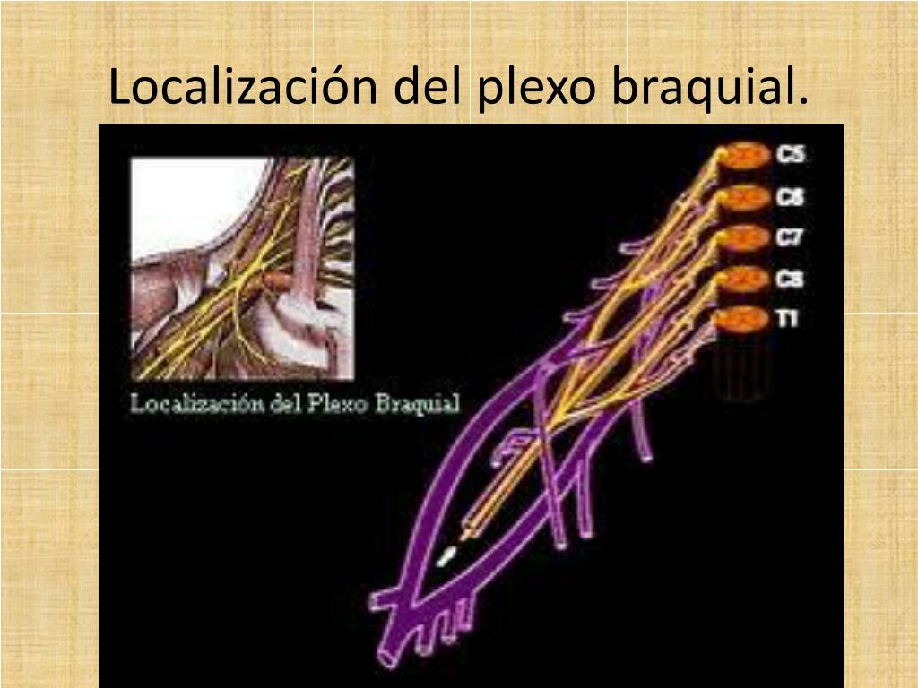 Localización del plexo braquial.