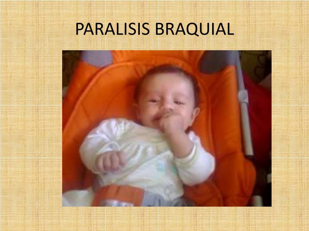 PARALISIS BRAQUIAL