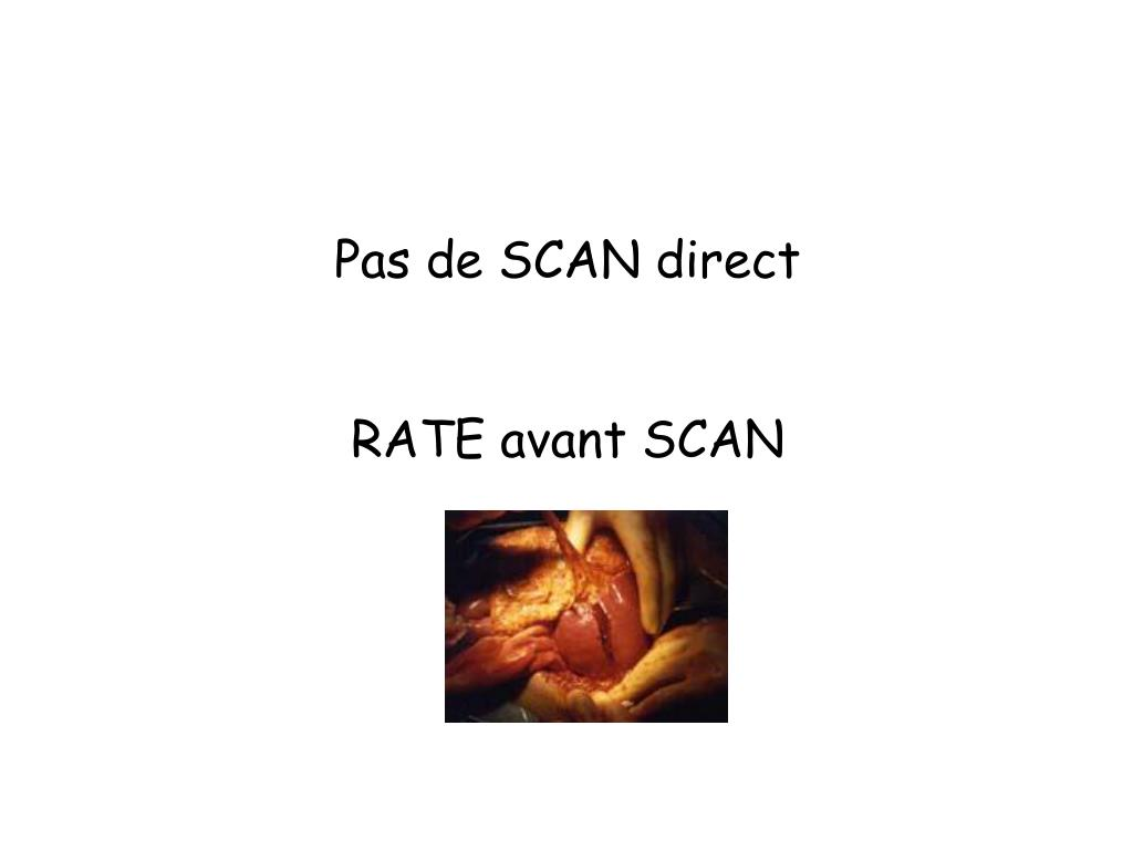 Pas de SCAN direct