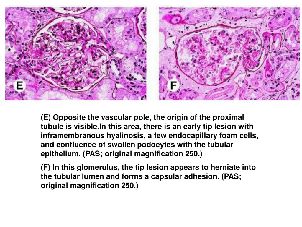 (E) Opposite the vascular pole, the origin of the proximal tubule is visible.In this area, there is an early tip lesion with inframembranous hyalinosis, a few endocapillary foam cells, and