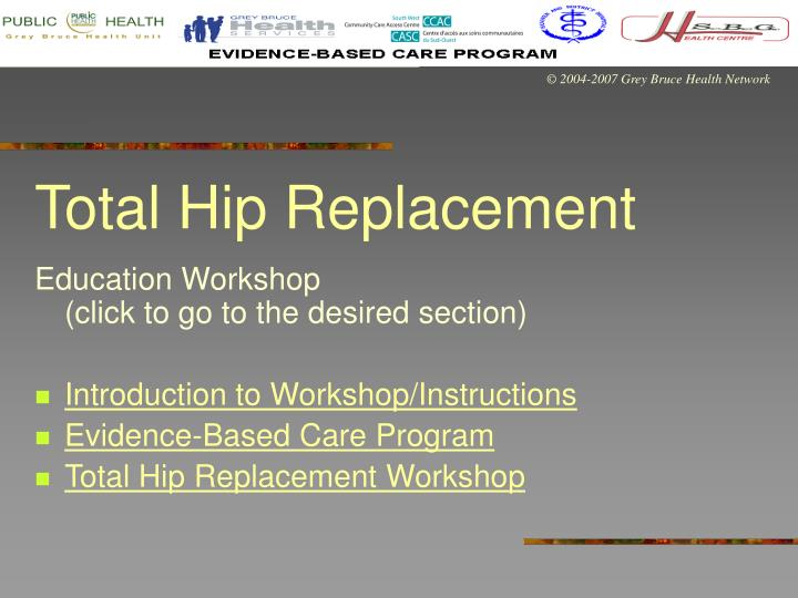 Total hip replacement l.jpg