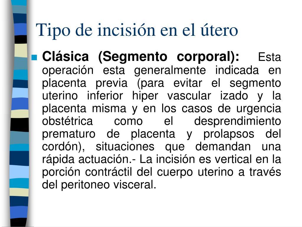 Tipo de incisión en el útero
