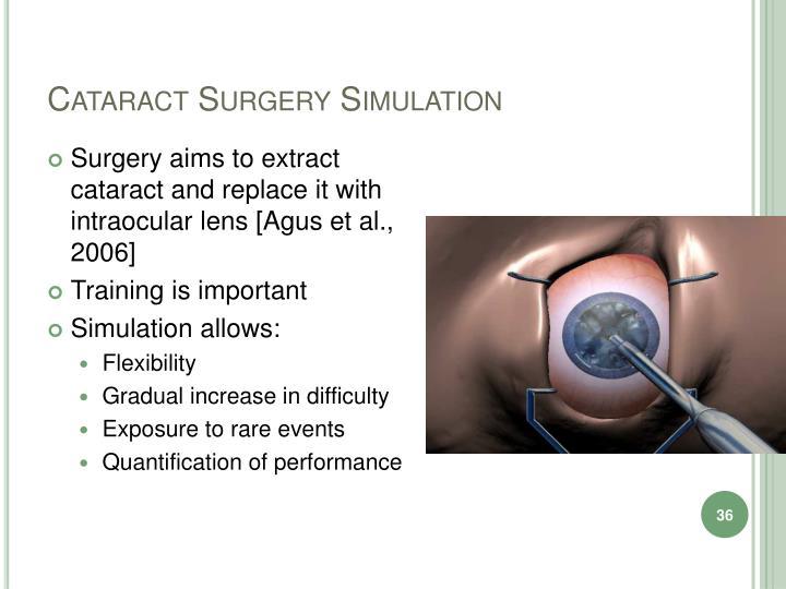 Cataract Surgery Simulation