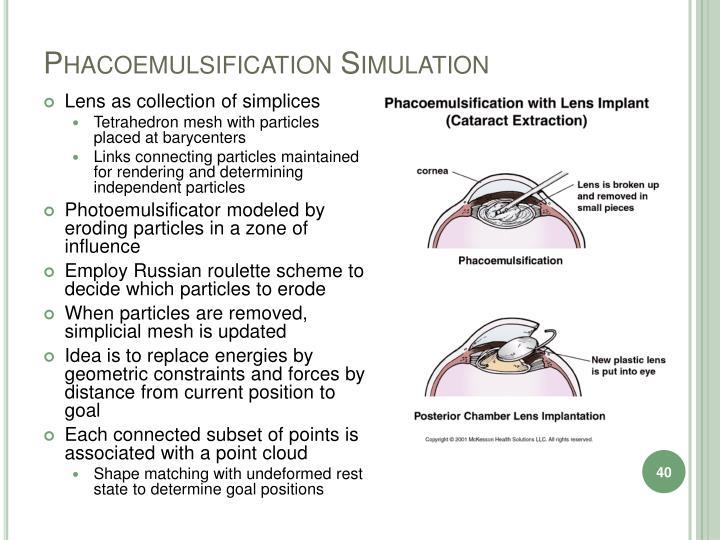 Phacoemulsification Simulation