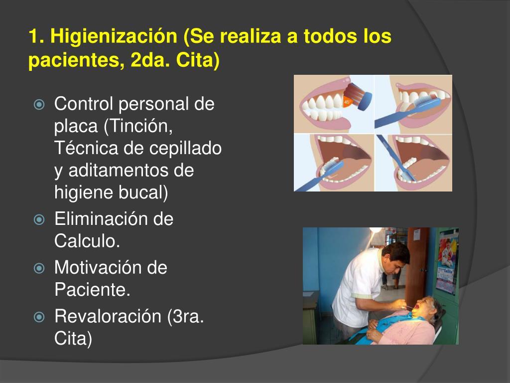 1. Higienización (Se realiza a todos los pacientes, 2da. Cita)